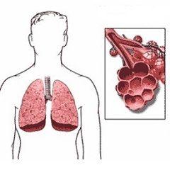 abces pulmonar - o inflamație a țesutului pulmonar