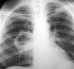 Tomografia computerizată - metodă de diagnostic abces pulmonar