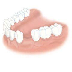 Адентия - полное или частичное отсутствие зубов и их зачатков