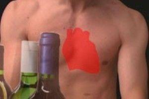 alkogolnaia kardiomiopatiia
