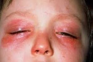 allergiia na glazax