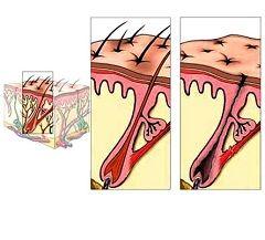 Алопеция - выпадение волос