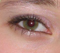Амблиопия - ленивый глаз