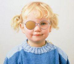 Ограничение использования здорового глаза - основной метод лечения амблиопии