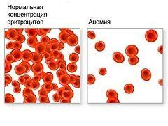 Понижение в крови гемоглобина или эритроцитов - анемия