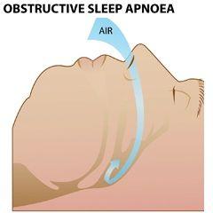 Апноэ - оставнока дыхательных движений