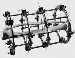 Аппарат Илизарова, созданный советским хирургом