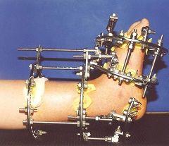 Аппарат Илизарова на ноге, фиксирующий кость
