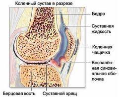 Артадол - препарат для нормализации обмена веществ в хрящевой ткани