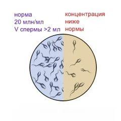 Astenozoospermia - o cauza comuna a infertilitatii masculine