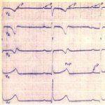 Кардиограмма сердца при атриовентрикулярной блокаде