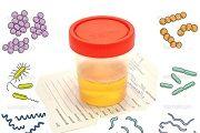 bakterii v moche