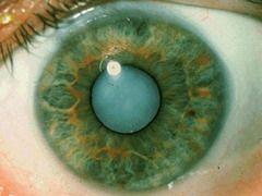 Бельмо на глазу (лейкома) – это помутнение роговицы