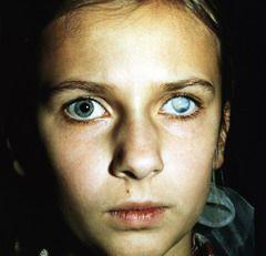 Бельмо на глазу — это изменение цвета роговицы в сторону фарфоровых белых оттенков