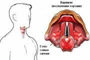 bol v gorle pri glotanii iz-za laringita