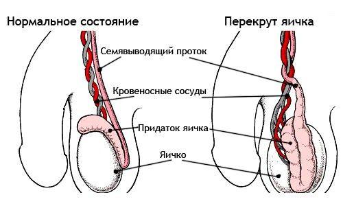Перекрут возникает при излишнем передавливании нервов, расположенных в придатках
