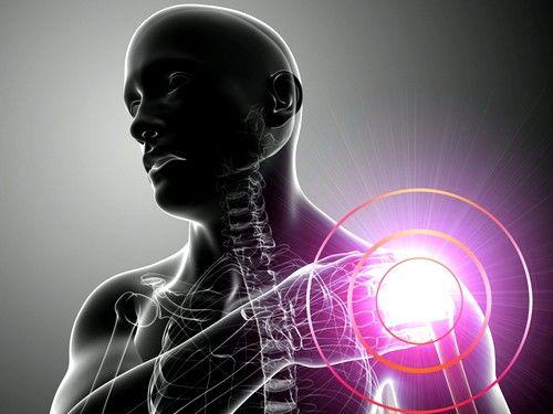 Taloženje soli kalcijuma kao uzrok bolova u ramenom zglobu