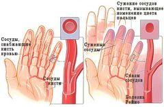 Болезнь Рейно вызывается повышенной активностью гладких мышц в стенках артерий