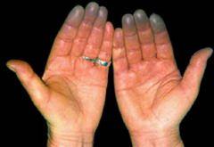 В особо тяжелых случаях при болезни Рейно может развиться гангрена пальцев