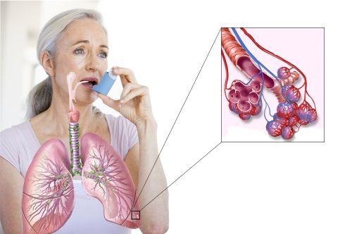 Astmul - o boală perfidă și periculoasă