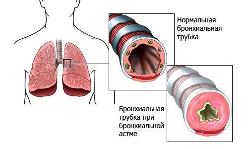 Mecanismul de dezvoltare Astmul