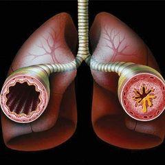 Astmul bronșic - o boală cronică