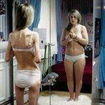 Булимия - расстройство пищевого поведения