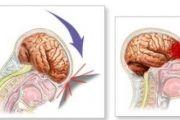 cherepno mozg travma