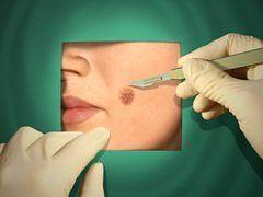 Что предпринять после излечения меланомы для предотвращения рецидива