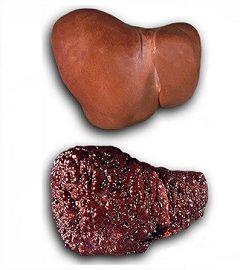 Цирроз - самое распространенное заболевание печени