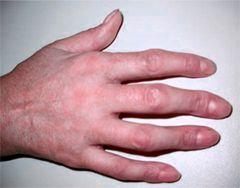 Deformacije prsta ruke