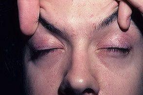 Când sunt depistate precoce supravietuire dermatomiozita adult este de 80% pentru primii 5 ani și 73% - 8 ani