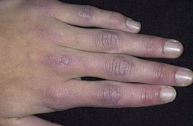 Lipsa unei înțelegeri clare a cauzei dermatomiozita este completat de cazurile descrise dispariția tuturor simptomelor, fără tratament special