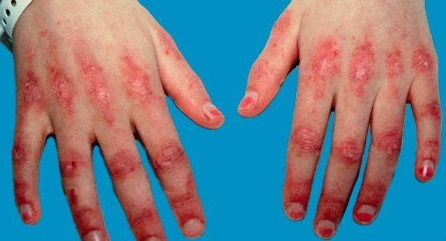 Tratamentul dermatomiozita necesită o abordare cuprinzătoare, o serie de specialități medicale, în funcție de complicațiile asociate