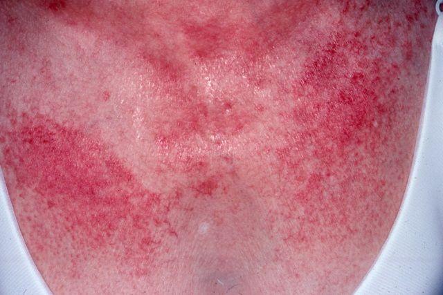 Dermatomiozita este o boala complexa de tesut muscular de origine necunoscută, cu manifestări caracteristice ale pielii