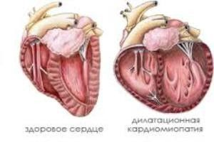 dilatacuonnaia kardioiopatiia