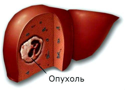 tumoră hepatică