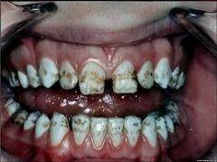 Средняя форма флюороза зубов