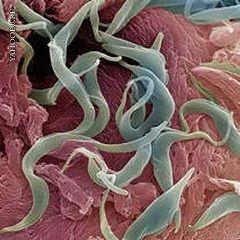Гельминтоз - паразитарное заболевание
