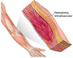 Припухлость и изменение цвета кожи - первые признаки гематомы