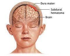 Субдуральная гематома головного мозга