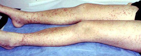 Проявление геморрагического васкулита на ногах