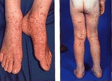 Проявление геморрагического васкулита у детей