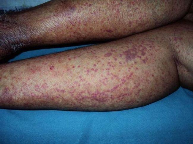Проявления геморрагического васкулита у взрослого человека