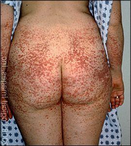 Проявления геморрагического васкулита на теле взрослой женщины