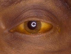 Желтый оттенок глазных белков - симптом гепатита С