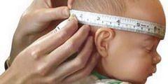 Симптоматика гидроцефалии головного мозга у детей заключается в увеличенном размере головы