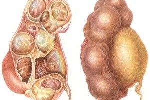 hydronephrosis pocki