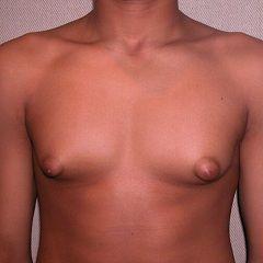 Гинекомастия – патология молочных желез у мужчин