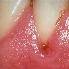 Гингивит - воспаление десен